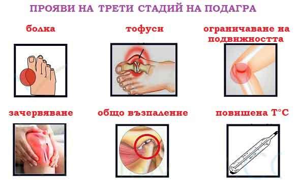 симптоми и признаци за подагра, лечение, билки