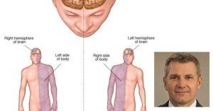 исхемичен инсулт в ляво