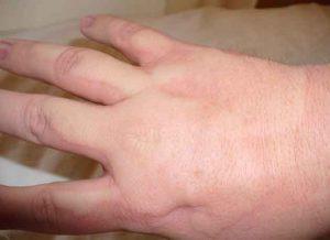 studova-alergia-snimki-(3)