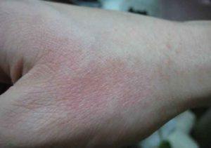 studova-alergia-snimki-(4)