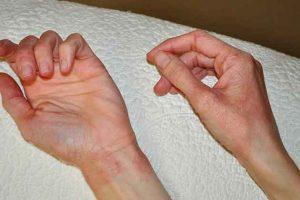 studova-alergia-snimki-(5)