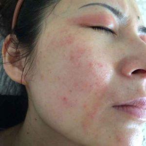studova-alergia-snimki-(6)