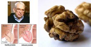 Какви билки помагат при хроничен простатит?