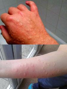 студова алергия снимки