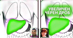 уголемен увеличен черен дроб какъв лекар