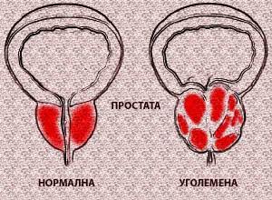билки за простата и простатит