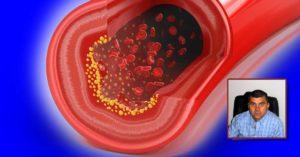 билки и лечение за висок холестерол сваляне