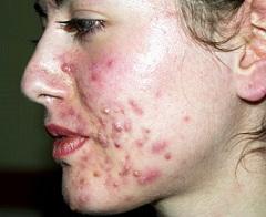 лечение на акне и гнойни пъпки по лицето Демир бозан