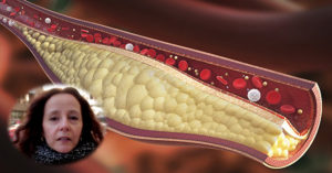 сваляне на холестерол с билки -01