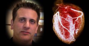 сърдечна недостатъчност симптоми лечение билки 016543