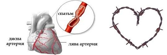 бодежи в сърцето болки отляво отдясно изтръпване ръка - 01