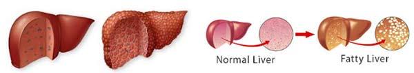 омазнен черен дроб - 05 затлъстяване