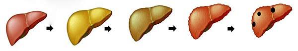 омазнен черен дроб симптоми - 02