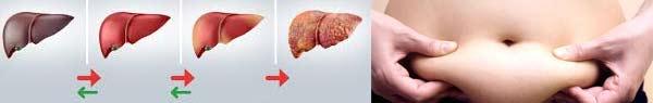 омазнен черен дроб -02 лечение