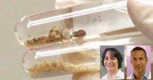 Как изглеждат песъчинките в урината (на снимка). Кои са симптомите
