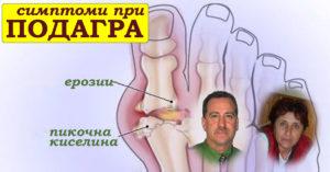 симптоми за подагра, лечение, признаци