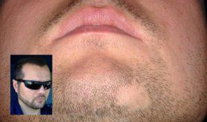 алопеция ареата, оголване на брадата