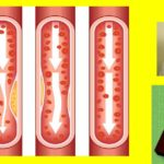 Атеросклероза и лош холестерол си заминават с билки