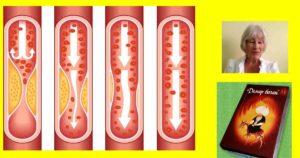 демир бозан 01 за атеросклероза и висок холестерол