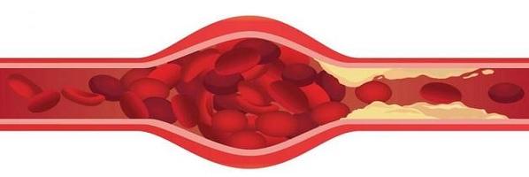 холестерол, холестеролова плака