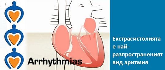 Екстрасистоли: защо и как се появяват, симптоми. Правилното лечение, билки