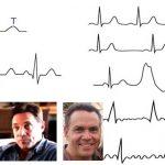 Билки за бодежи в сърцето. Как премахнах предсърдно мъждене и прескачане (аритмия)