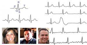 Прескачане на сърцето - 01 - (аритмия), мъждене