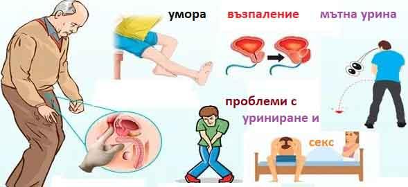 prostata-02